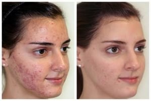 LED Therapy May Cure Acne